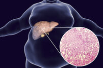 Special Report on Liver Disease: The phantom menace