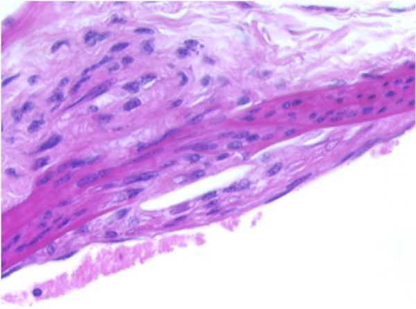 Thoracic Aorta