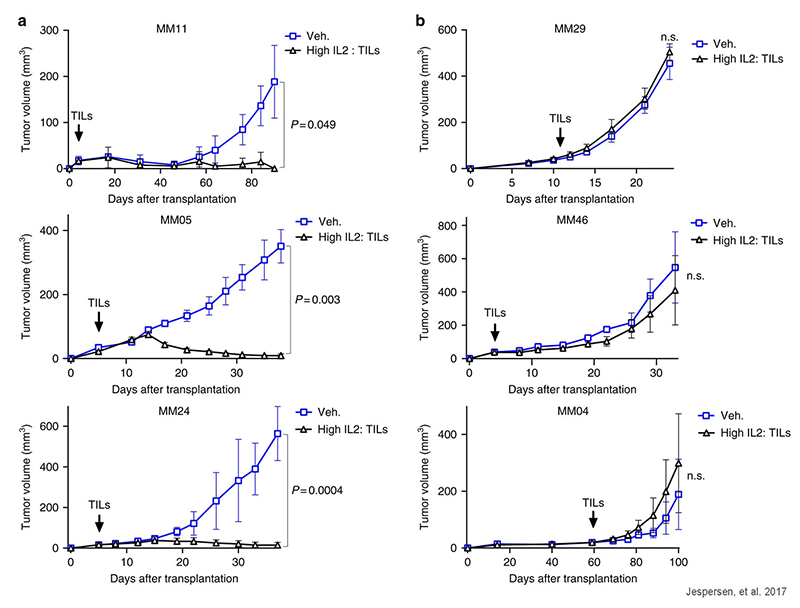 Adoptive cell transfer in hIL-2 NOG mice correlates with response in patients