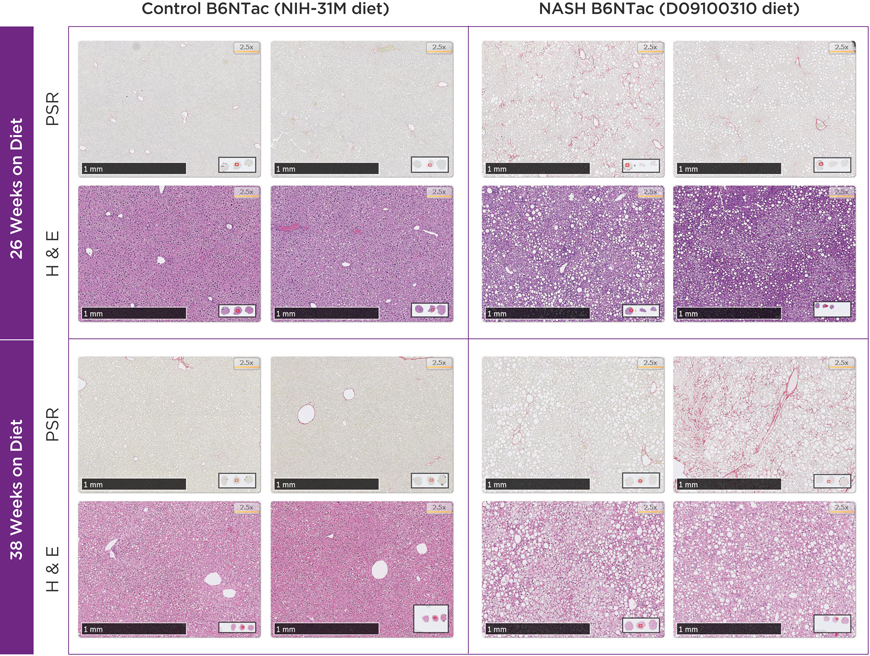 Histopathology for C57BL/6NTac mice placed on D09100310 diet (NASH B6NTac) or kept on chow diet (Control B6NTac) from 5 weeks of age. Animals were on diet for 26 weeks (top set) or 38 weeks (bottom set). Picrosirius red (PSR) staining illustrates collagen I and III fibers, hematoxylin and eosin (H&E) staining illustrates steatosis. Two control and two NASH animals are shown for each time point, with PSR and H&E shown for the same individual animal. Different individual animals were used for each time point (i.e. data is not longitudinal by animal). Data provided by an anonymous pharmaceutical company.