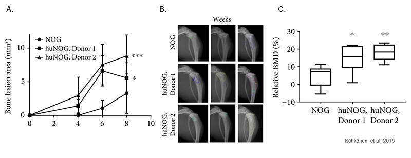 Human immune system increases breast cancer-induced osteoblastic bone growth in huNOG mice
