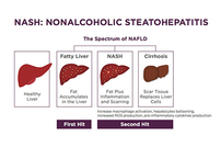 photo from The more things change, the more they stay the same: the Amylin liver NASH (AMLN) Diet