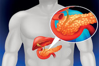 photo from Pancreatic Cancer Microbiome Suppresses Immune Responses