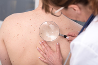 photo from Skin Cancer Detection and Prevention