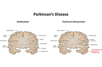 photo from New Rab29 Overexpression Mouse Model for Parkinson's Disease
