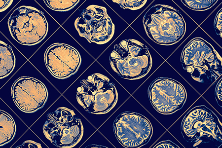 Alzheimer's Disease: Steps towards more translational research models