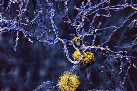 Alzheimer disease: neuron with amyloid plaques