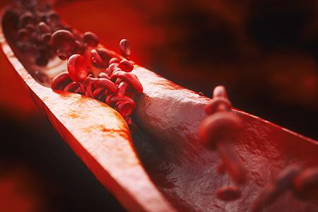 Apolipoproteins in Animal Models of Cardiovascular Disease
