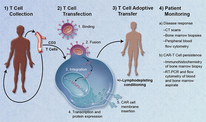 CAR Engineered T-Cell Adoptive Transfer