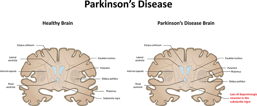 Comparison between healthy brain and brain inflicted with Parkinson's Disease