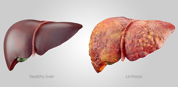 Healthy liver versus cirrhosis