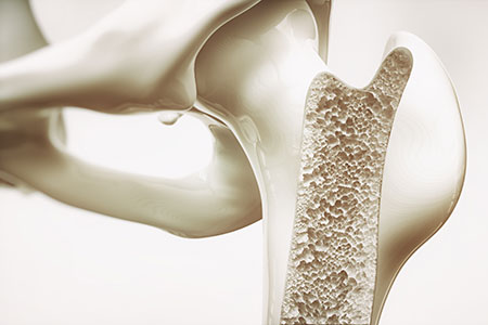 Osteoporosis stage 3 of 4 - upper limb bones
