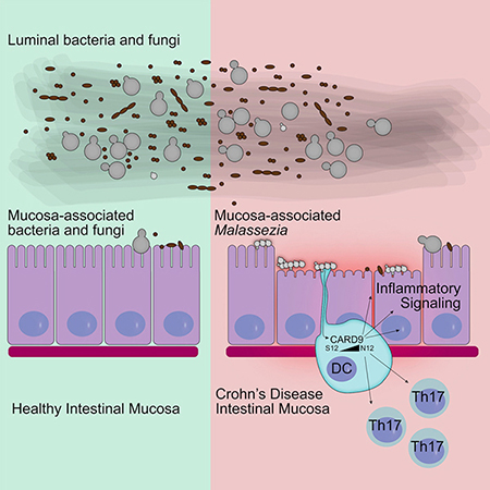 IBD Severity and Fungi in Microbiome