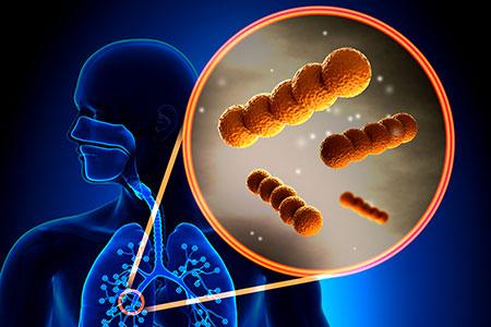 Murine Lung Microbiome Webinar Recap