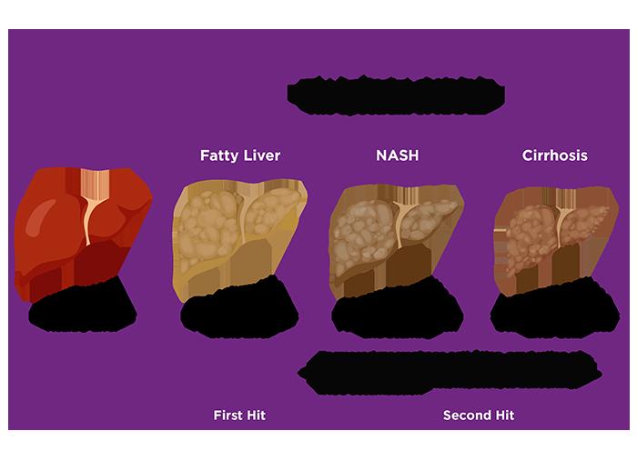 NASH: Nonalcoholic Steatohepatitis