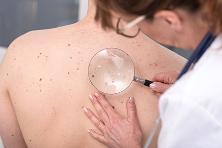 Skin Cancer Detection and Prevention